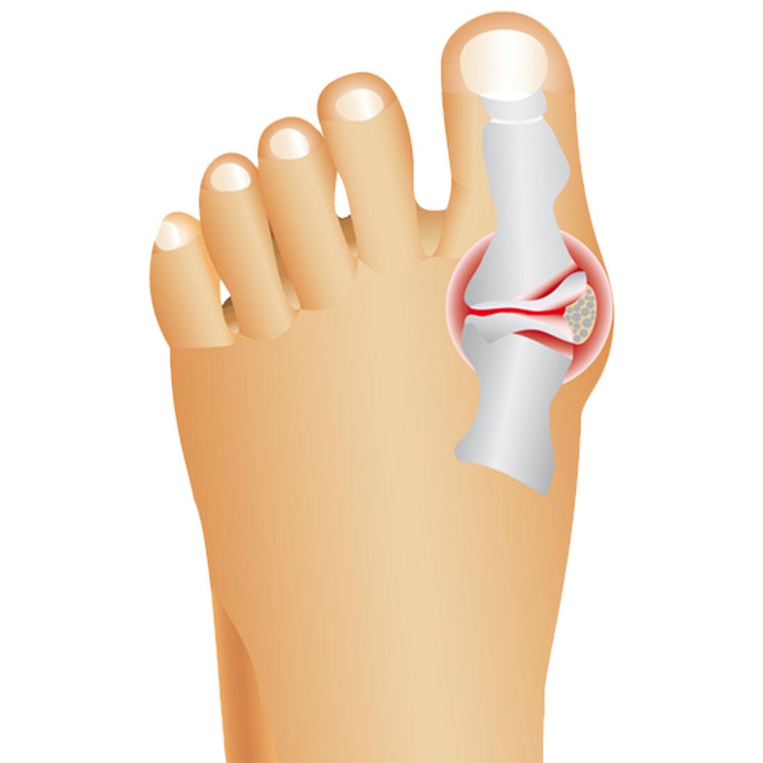 Корректор больших пальцев ног ночной, 1 пара [06781],